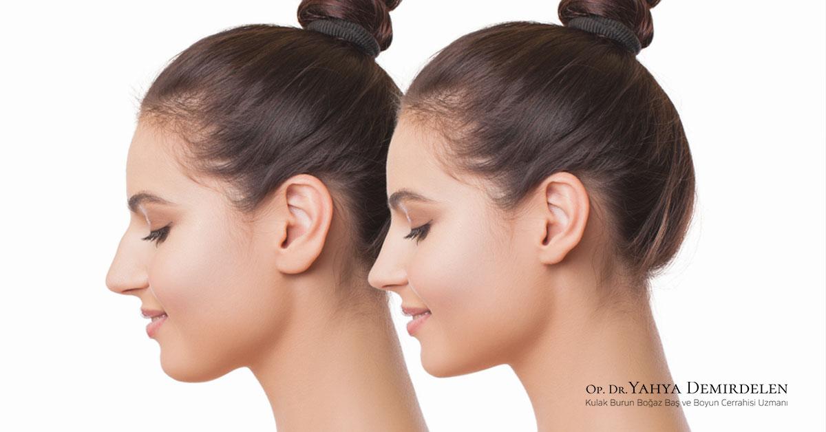 Kepçe Kulak Estetiği ve Burun Estetiği Aynı Anda Yapılabilir Mi?